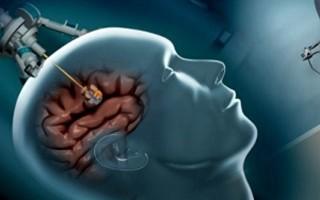 Удаление опухоли головного мозга: показания, подготовка, реабилитация