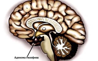 Аденома гипофиза головного мозга что это такое?