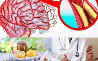 Лечение сосудов головного мозга: народные средства, традиционная медицина