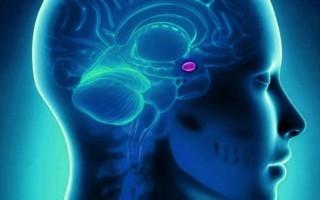 Доброкачественная опухоль головного мозга