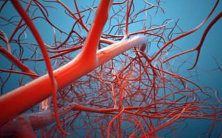 Что такое мальформация сосудов головного мозга