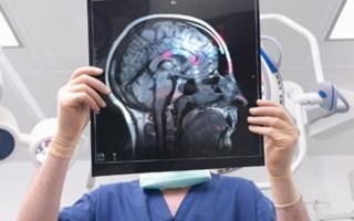 МРТ (магнитно-резонансная томография) головного мозга с контрастом