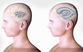 Гидроцефалия головного мозга у взрослого человека: почему возникает, ранняя диагностика, лечение и прогноз