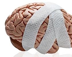Черепно-мозговые травмы (ЧМТ) головного мозга