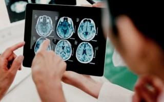 Снимок головы: как называется, что показывает рентген головного мозга