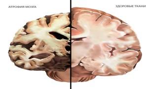 Атрофия (отмирание клеток) головного мозга