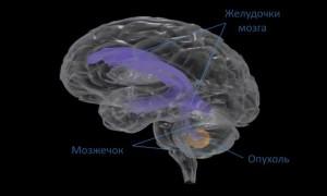 Опухоль мозжечка головного мозга — на сколь опасно для жизни?