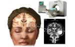 КТ (компьютерная томография) головного мозга