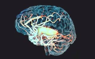 Что такое очаговые изменения белого вещества головного мозга