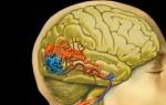 Сосудистые заболевания головного мозга что это?