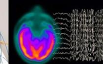 Легкие диффузные изменения биоэлектрической активности (БЭА) головного мозга