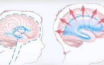 Расширение наружных ликворных пространств головного мозга у взрослых