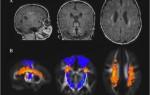 Очаговое поражение головного мозга что это такое?