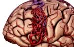 Цереброваскулярная недостаточность головного мозга — что это?