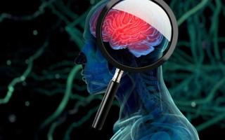 Что такое глиобластома головного мозга: причины появления