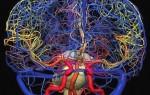 Ангиография сосудов головного мозга: виды, показания, противопоказания, подготовка и проведение процедуры