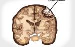 Что такое менингиома головного мозга?