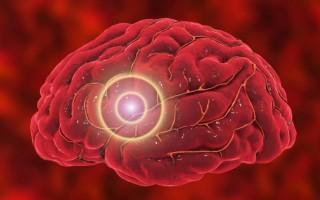 Ишемический инсульт головного мозга: причины возникновения, первые признаки