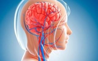 Кровоснабжение головного мозга человека
