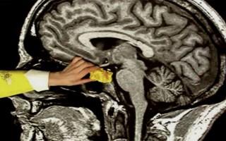 Опухоль гипоталамуса: симптомы, диагностика болезни