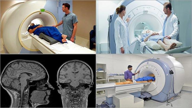 МРТ мозга