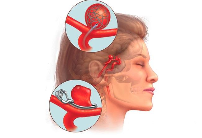 Аневризма сосудов в мозге головы