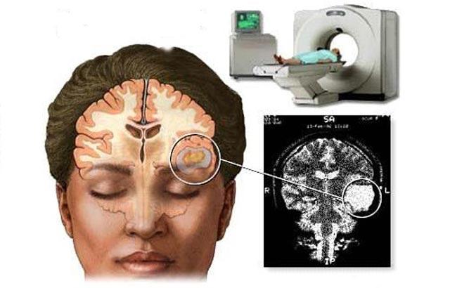 компъютерная томография головного мозга