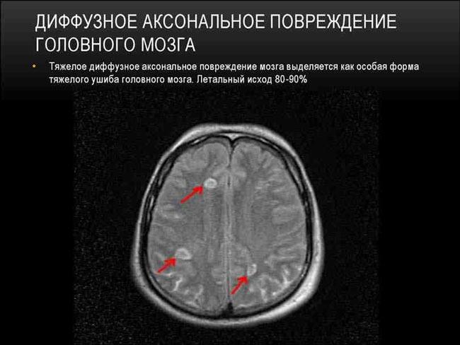 диффузная астроцитома головного мозга