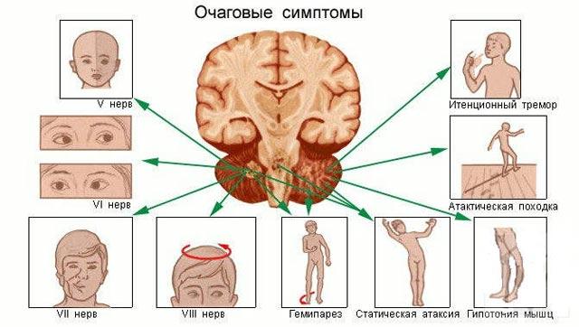симптоматика поражения ствола мозга