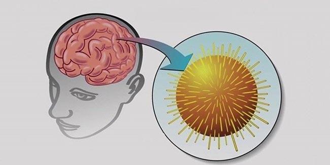 вирус энцефалита мозга