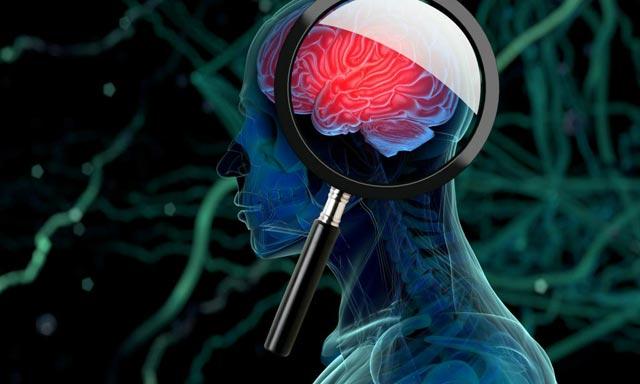 опузоль мозга