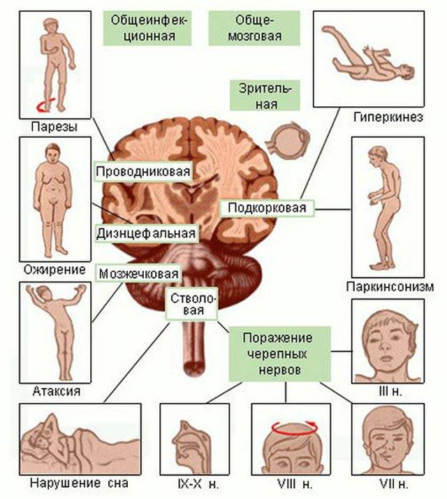 признаки и симптомы