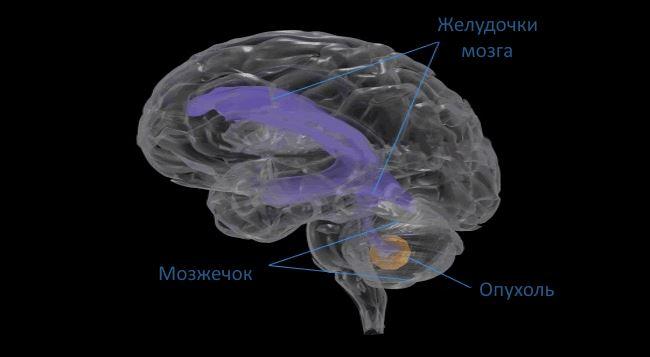Мозжечковая опухоль