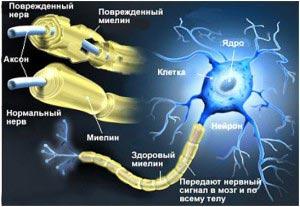 повреждение клеток нерва
