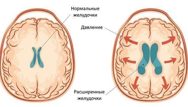 увеличение желудочков при гидроцефалии