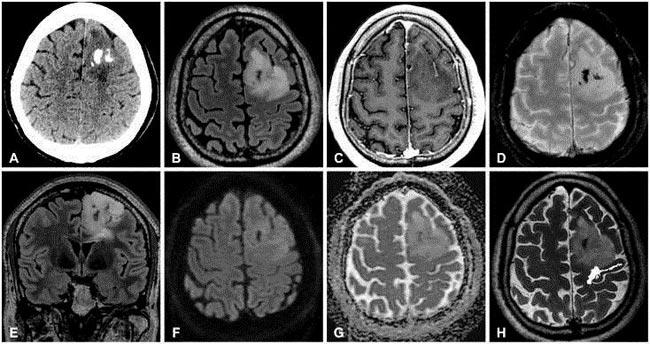 Диагностика на МРТ и КТ