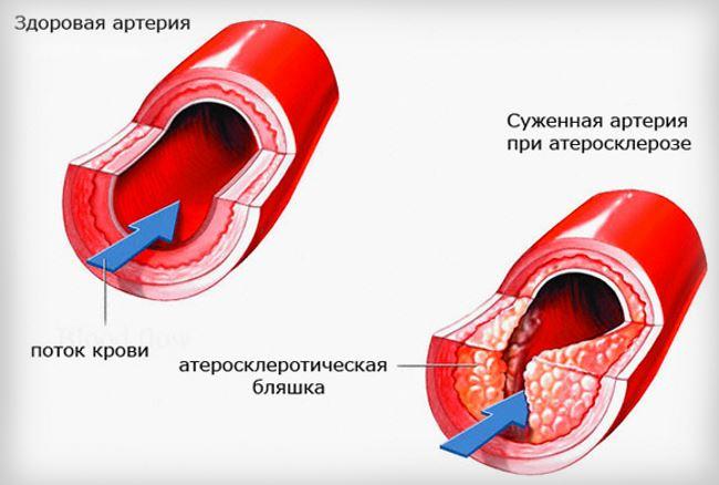 Атеросклероз ГМ