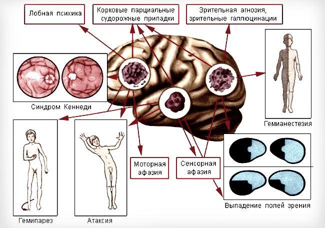 Проявление симптомов