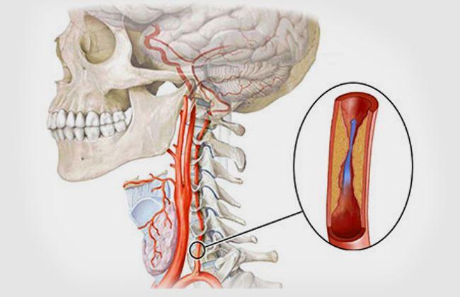 Поражение левой артерии