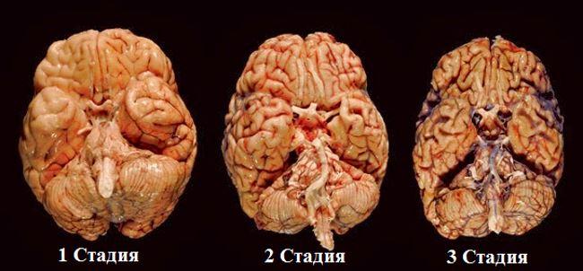 Три стадии заболевания