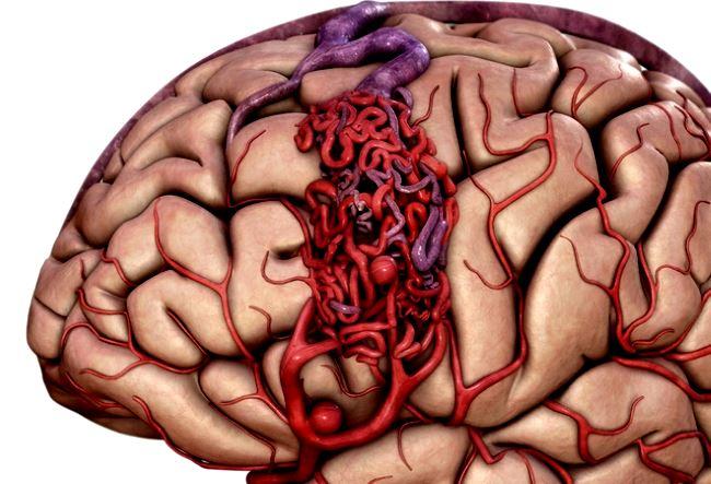 Недостаточность снабжения мозга