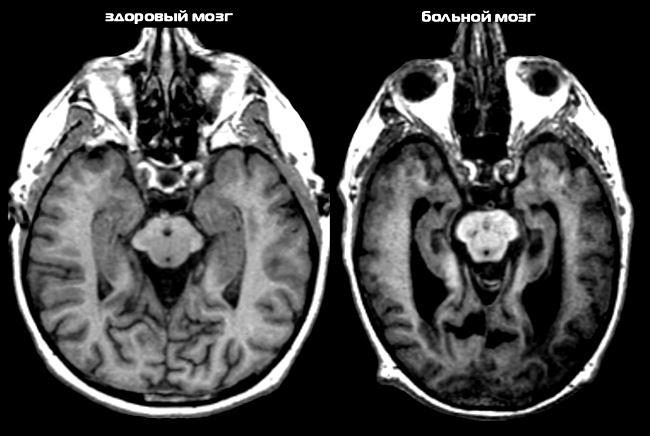 Очаги болезни Альцгеймера