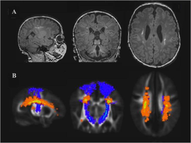 Очаги поражения мозга