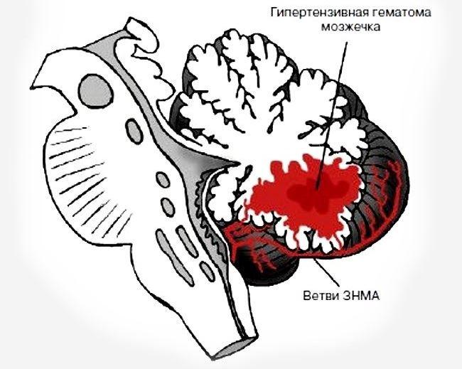 Кровоизлияние рисунок