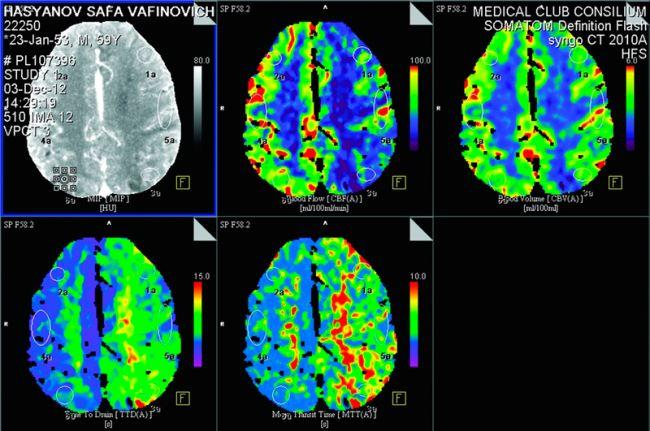 МРТ перед удалением опухоли мозга головы