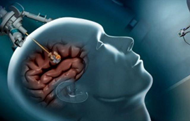 Операция по удалению опухоли ГМ