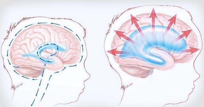 Расширение ликворных пространств головного мозга