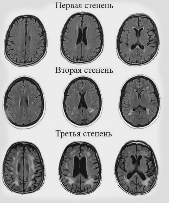Стадии лейкоареоза головного мозга