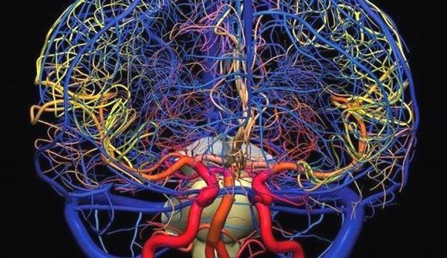 ангиография сосудов мозга головы