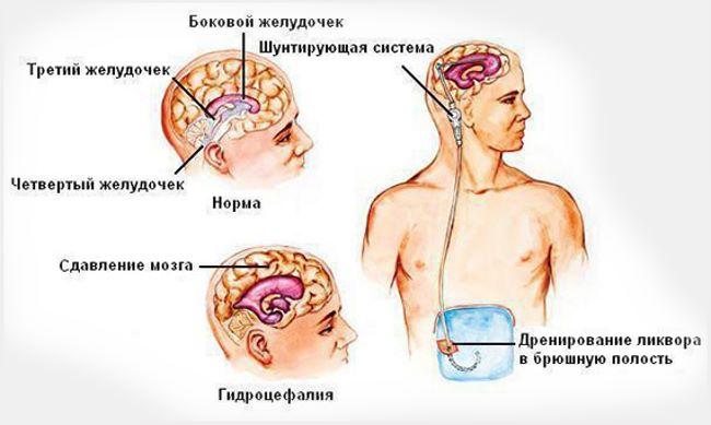 Шунтирование мозга головы